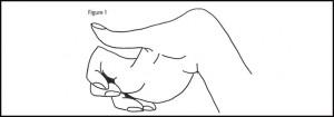Desenho da mão de uma pessoa com Distonia